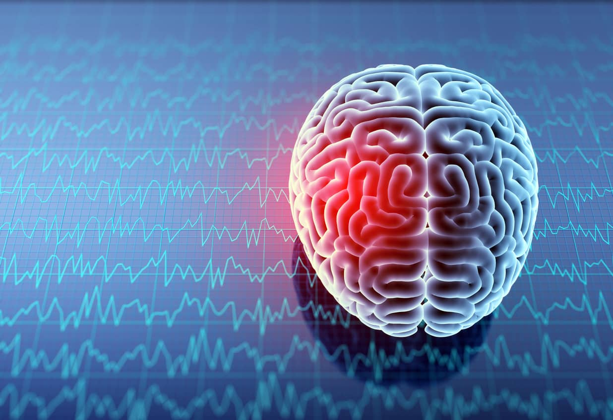 Litigating Mild Traumatic Brain Injury Cases: Use Lay Witnesses to Tell an Emotionally Compelling Story