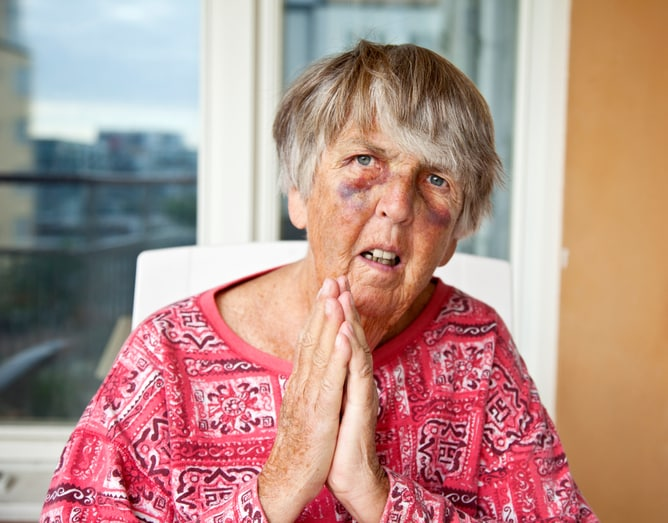 Nursing Home Negligence and Elder Abuse: The Often Hidden Crime